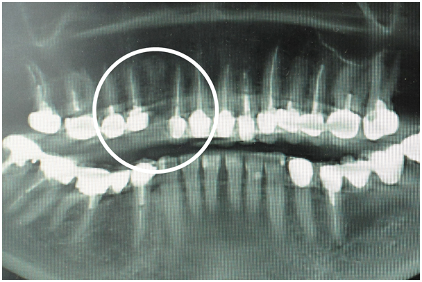X-ray before implant placement